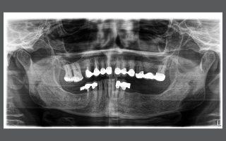 Ортопантомография - панорамна снимка